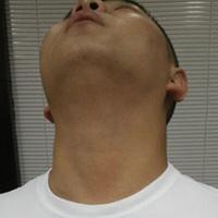流鼻血急救措施