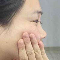 不同类型的牙疼治疗方法 牙疼如何快速的止疼