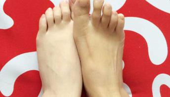 什么是连续性肢端皮炎