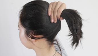 治疗脱发期有哪些注意事项