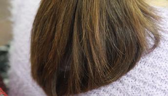 剃光头能抑制脱发吗