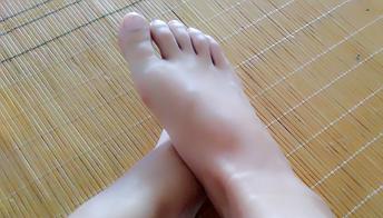 脚趾甲变黑是不是黑色素瘤