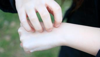 皮肤容易过敏怎么办
