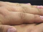 治疗手麻的偏方 中年人手麻是怎么回事