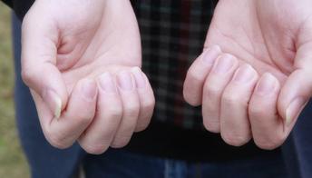 指甲上有白点是怎么回事