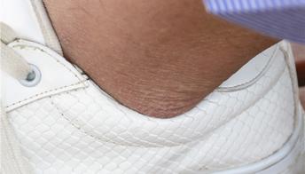 脚后跟干裂怎么办