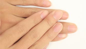 灰指甲的初期症状