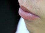 男性嘴唇干裂引发唇炎