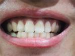 男人更容易患牙周炎