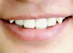 青少年牙周炎的预防