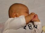 幼儿患先天性青光眼