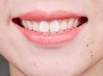 孕前先洗牙 牙病绕开走