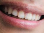 孕前口腔检查洗牙不可少