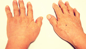 烧烫伤的伤疤能否修复