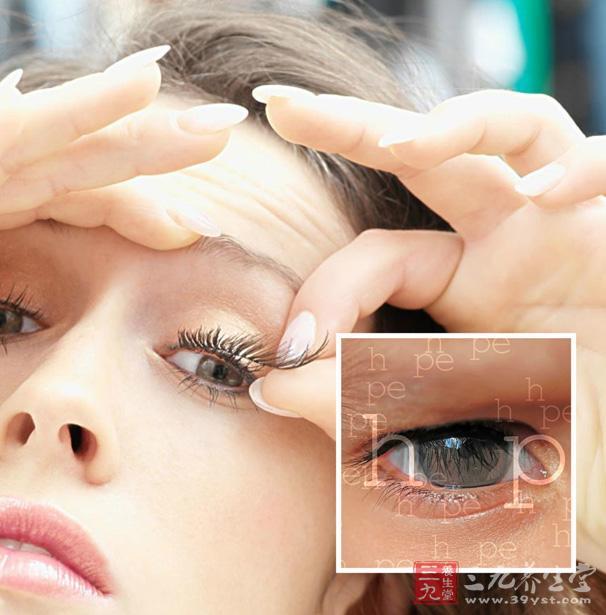 天后割双眼皮 哪四种类型的人不适合割双眼 7
