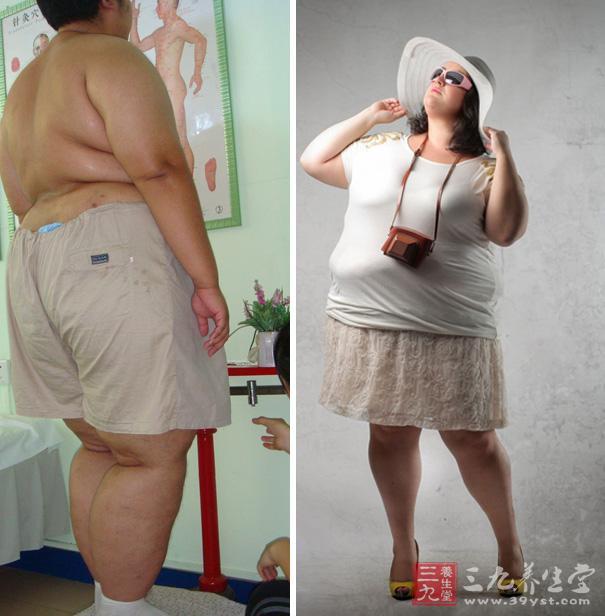 肥胖症的检查