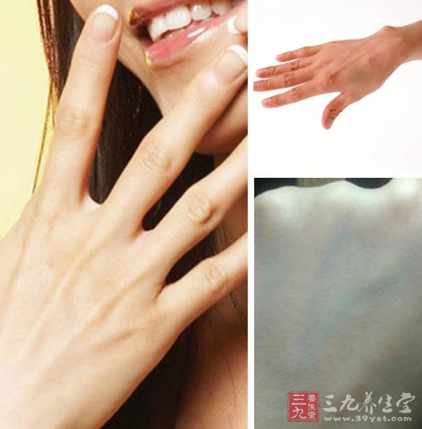青筋的分布    (一)手部青筋   小孩有积滞一般都在鼻梁上出现