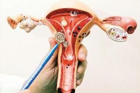 子宫肌瘤圈子