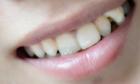 种植牙齿要多少钱