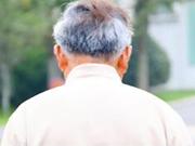 预防白发的方法有哪些