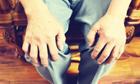 骨关节炎治疗措施