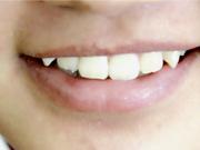 牙龈炎是怎么回事