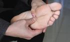 糜烂型脚气的治疗