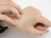 慢性湿疹的症状有哪些