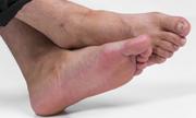 脚气怎么预防呢