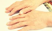 手指关节错位的表现