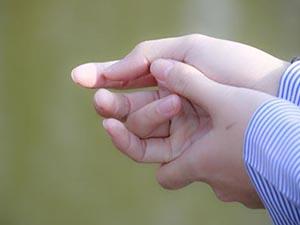 手汗�L症的分级