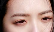 微创双眼皮是全切吗