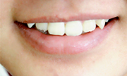 什么是牙齿开颌矫正
