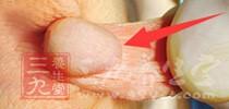 防止痘痘越长越多