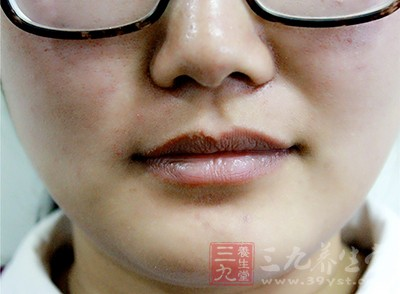 患上这种疾病与嘴周围长胡子有什么关系呢