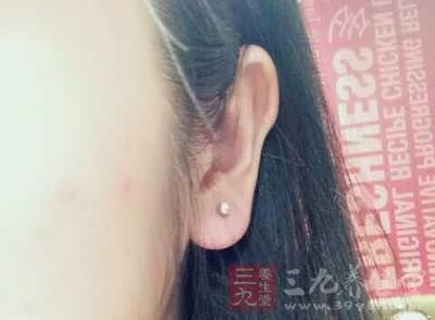 李某在打耳洞时发现,自己的耳朵边缘长了一颗黑痣