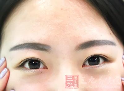 中药治疗近视的方法