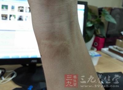对于烧烫伤留疤,其实是很难治疗的