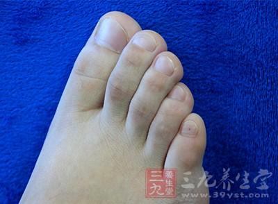 每日必须仔细检查脚上是否有细微的损伤