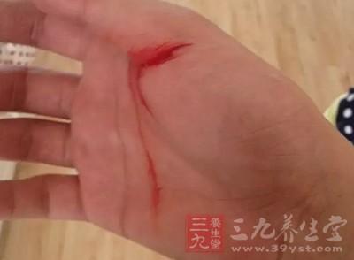 外伤后出血比较图片