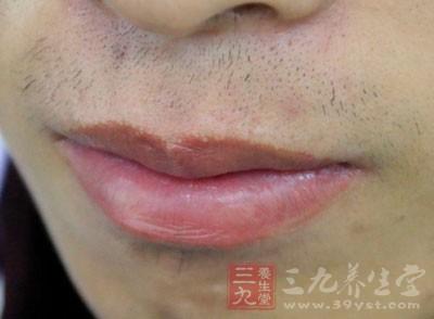嘴上起泡是什么原因 嘴上起泡的治疗方法