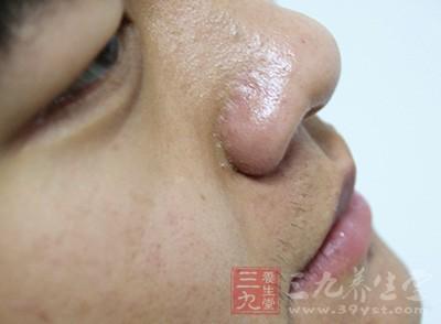 鼻咽癌的症状 脖子上长出这东西竟是癌症迹象