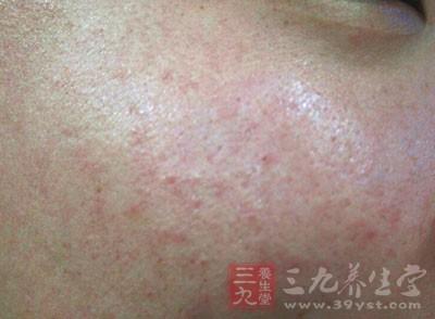 皮疹可发生在面部