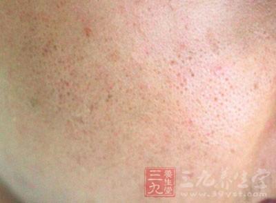 丘疹或脓包性损害破坏腺体
