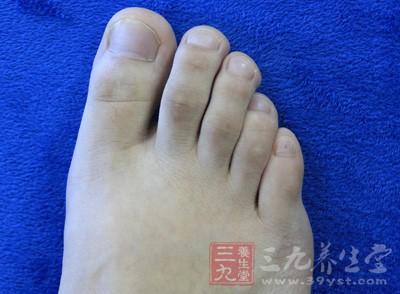 如何预防脚臭
