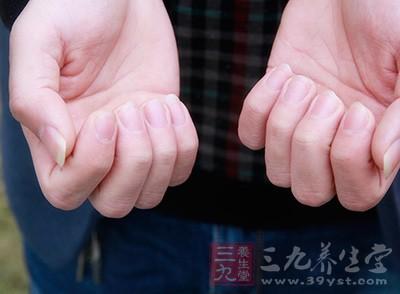 指甲与健康 指甲出现这条缝竟是肿瘤