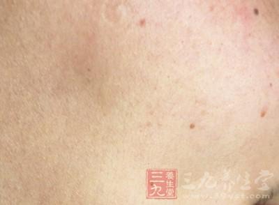 皮肤癌患者一般不会感到疼痛,不少患者是因为其它痛症
