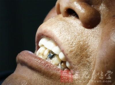 牙癌是什么症状_原来他的牙齿松动,是癌症在作怪.