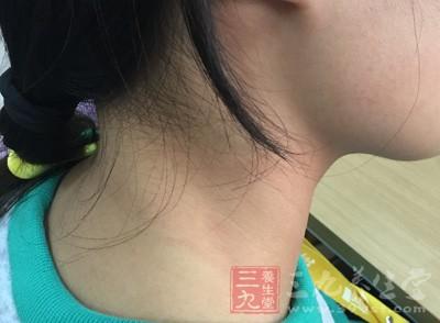 甲状腺功能紊乱 这些症状说明甲状腺紊乱了