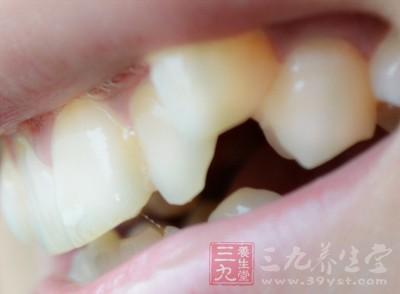 牙齿矫正 这二十大误区你不得不知